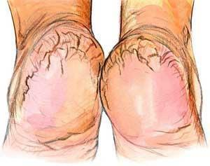 Cuide dos seus pés – como evitar as fissuras e que se tornem àsperos